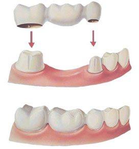fixed dental bridge thackeray mansfield