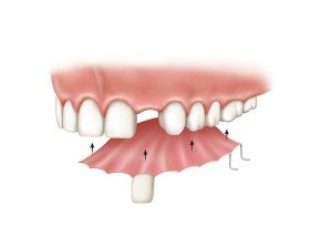 how do dentures fit mansfield