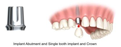 tooth implant mansfield