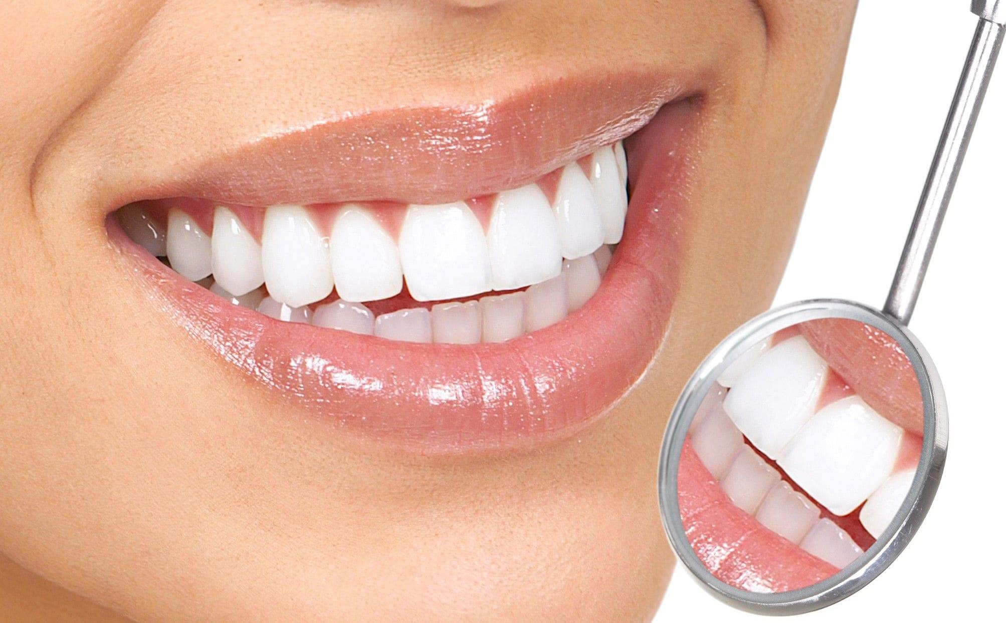 white teeth mansfield