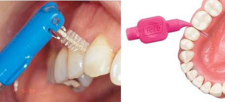 dental hygeine thackeray mansfield