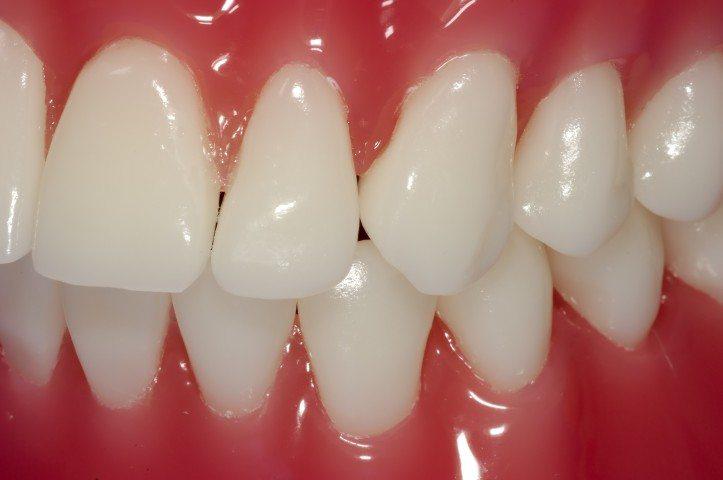 bleeding gums dentist mansfield