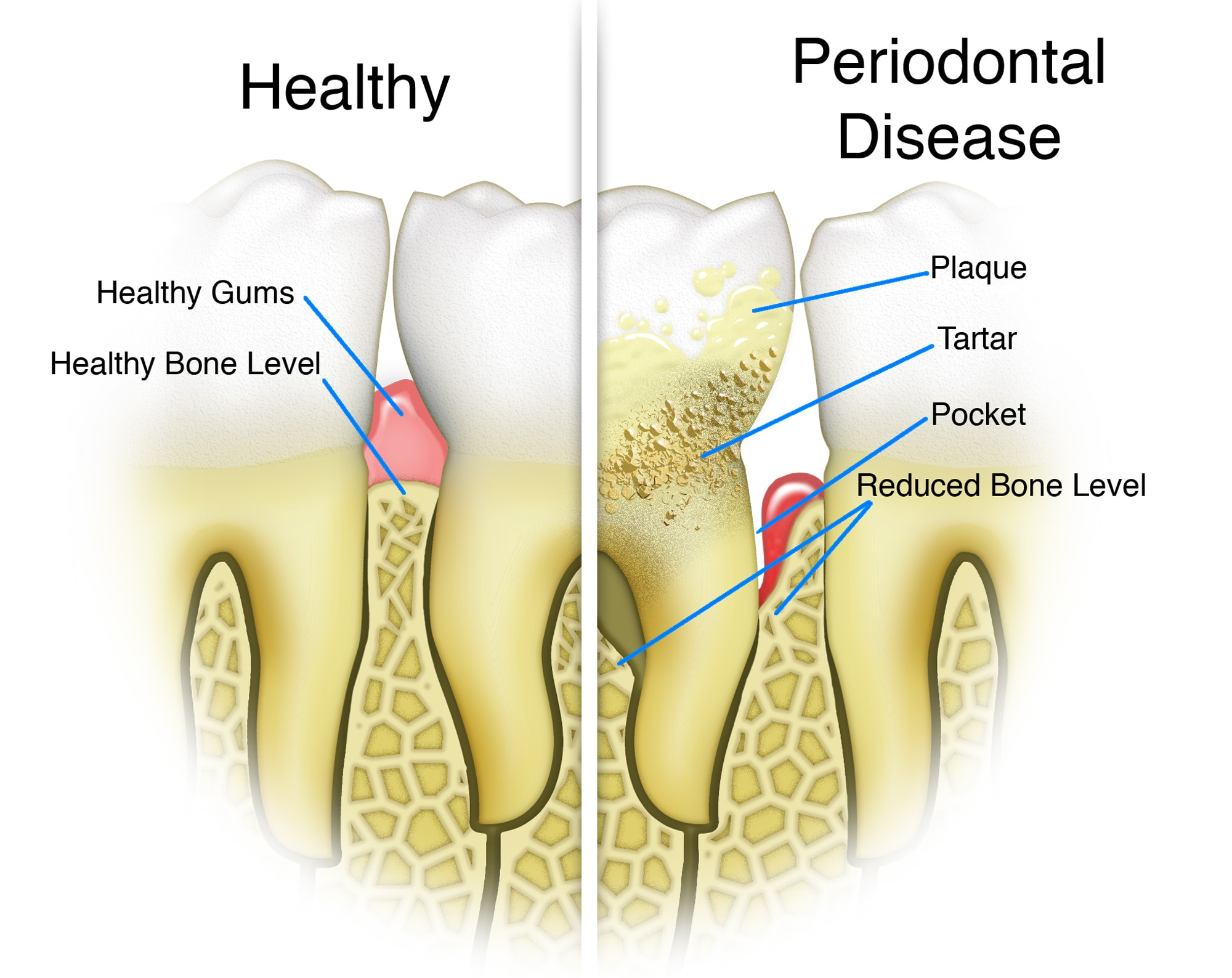 periodontal disease diagram thackeray mansfield