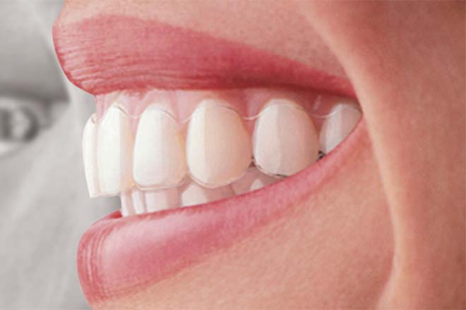 straight white tooth aligner mansfield