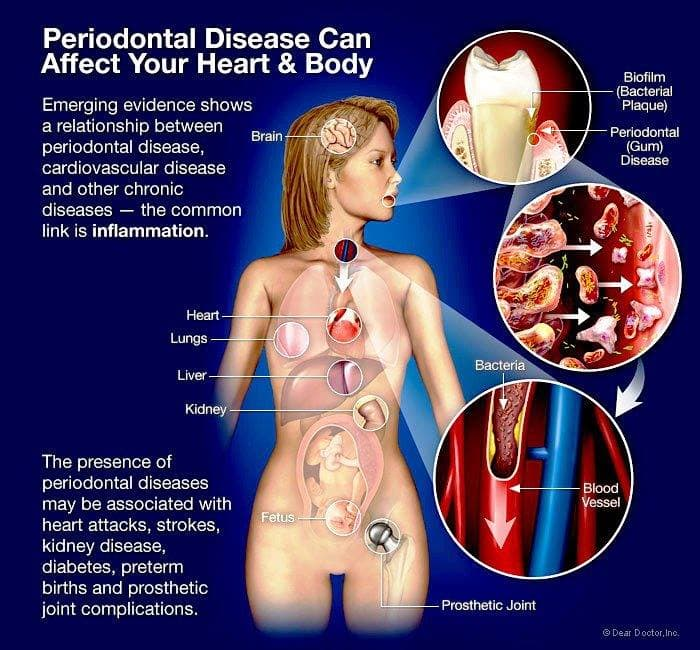 The Effects Of Periodontal Disease On Your Body