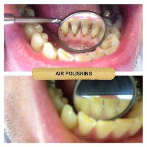air polishing dentist in mansfield