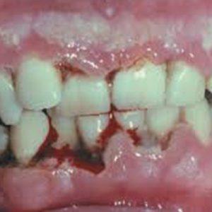 soraya bleeding gums in mansfield