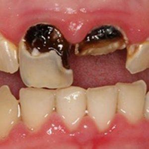 soraya teeth wear in mansfield