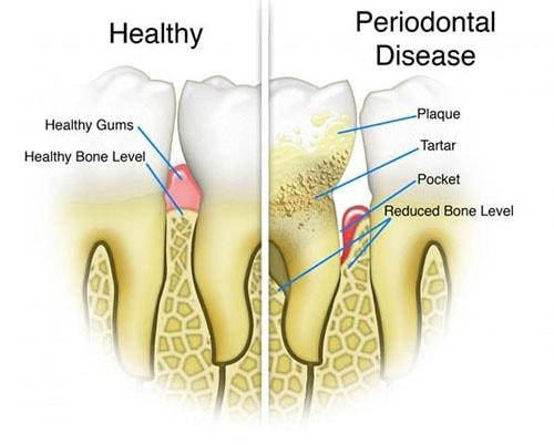 periodontal disease dentist in mansfield