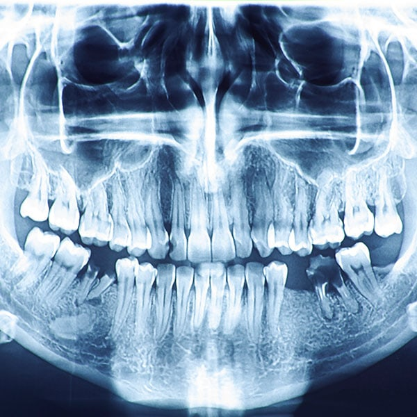 dental radiography dentist in mansfield